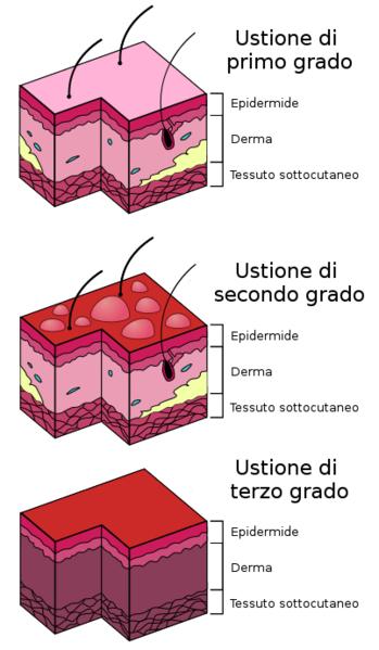 ustioni-scottature-tipi