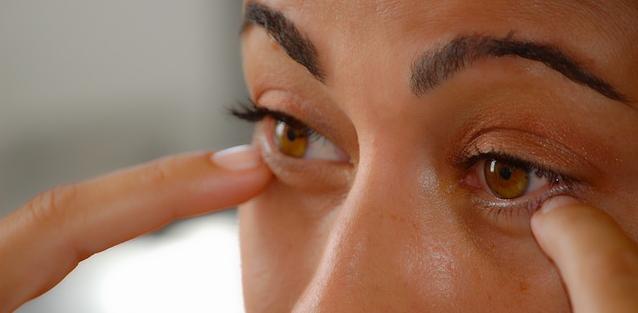 Occhi arrossati: rimedi naturali