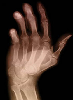 Artrite: rimedio naturale